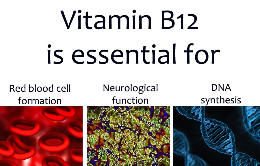 the difference between a b12 deficiency and pernicious anaemia, Skeleton